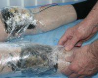 Как действует лечебная грязь при электрогрязелечении?