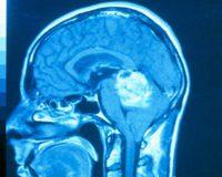 Ранние симптомы рака мозга