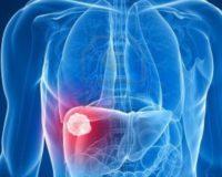 Выявлен белок, способный бороться с раком печени