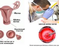 Что такое ножевая  биопсия шейки матки