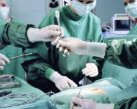 Лапароскопическая хирургическая стерилизация
