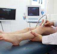 Артрит: лечение суставов в Ейске