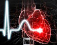 Самые распространенные заболевания сердечнососудистой системы