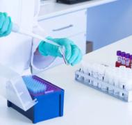 Экспресс-методы лабораторной диагностики