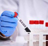 Анализы на онкомаркеры в Ейске