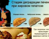Что такое жировой гепатоз печени?