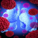 Коронавирус и пневмония, как осложнение