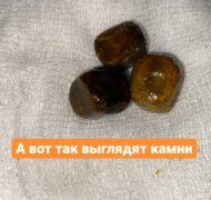 Камни в мочеточнике: удаление хирургическим путем