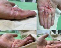 Контрактура Дюпюитрена: хирургическое лечение